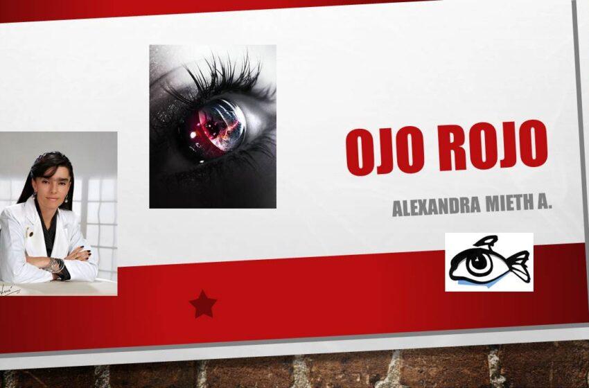 Ama tus ojos con Alexandra Mieth: el ojo rojo, como tratarlo.