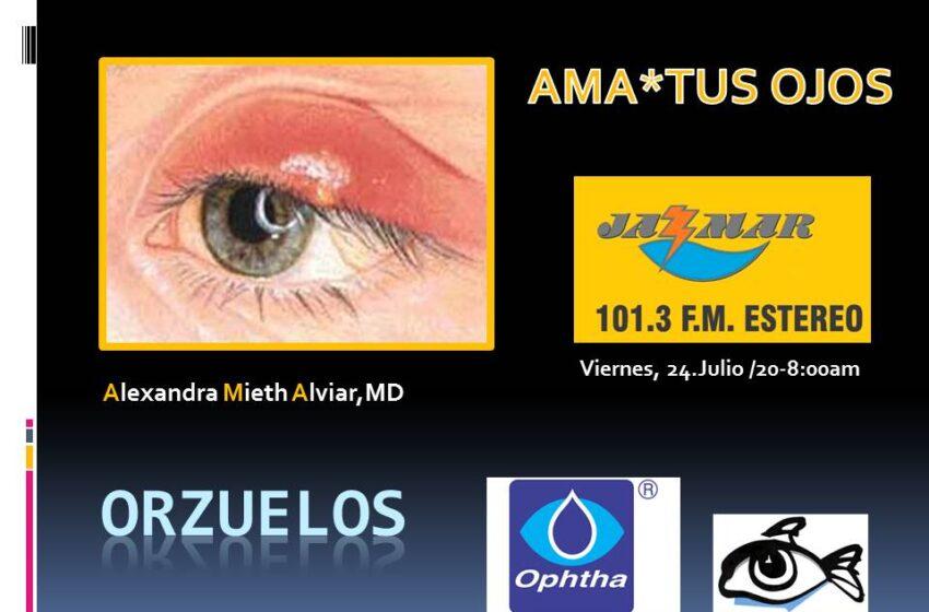Alexandra Mieth en ama tus ojos, tema de hoy los orzuelos.